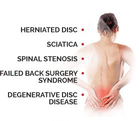 Spinal Conditions that Cause Back Pain