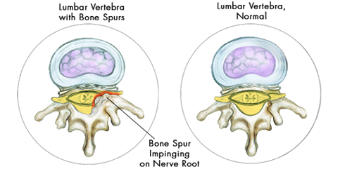 bone spurs in lumbar vertebrae