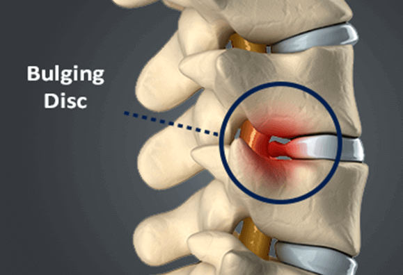 bulging disc Chiropractic Treatment for Bulging Disc