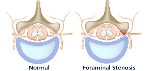 cause of foraminal stenosis illustrated