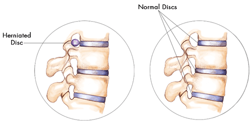 illustrated cause of herniated discs
