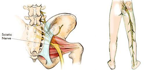 sciatic nerve causing pain
