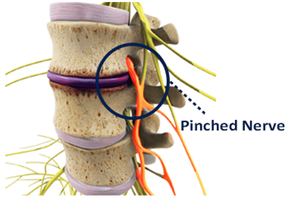 pinched nerves in the spine