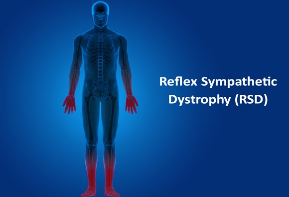 Possible Options for Reflex Sympathetic Dystrophy