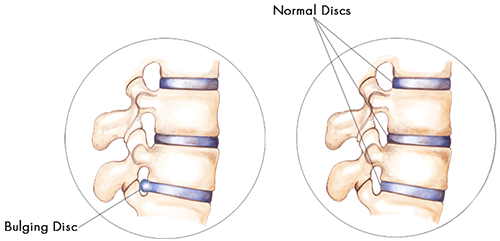 Bulging Disc Causes