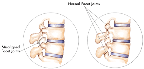 facet joint syndrome caused by misalignment