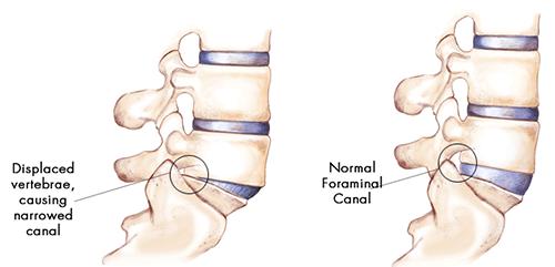 vertebrae causing spondylolisthesis