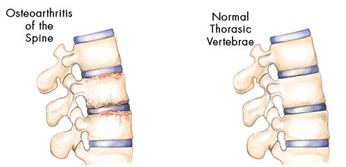 spondylosis-causes