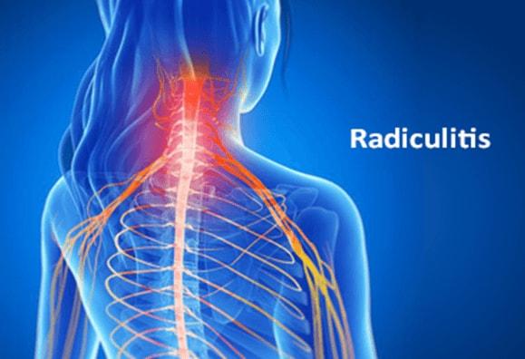 radiculitis