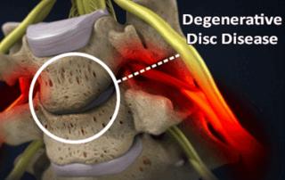 degenerative disc disease diagram