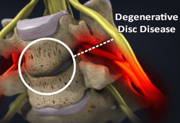 Common Symptoms of Degenerative Disc Disease