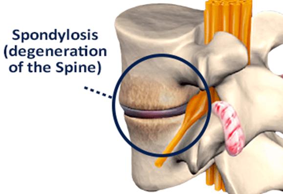 Understanding Spinal Arthritis