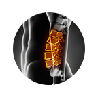 Lumbar Spine Surgery Xray