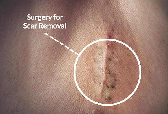 Scar Removal Surgeons