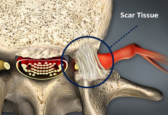 Scar Removal Surgery for Spinal Fusion Patients