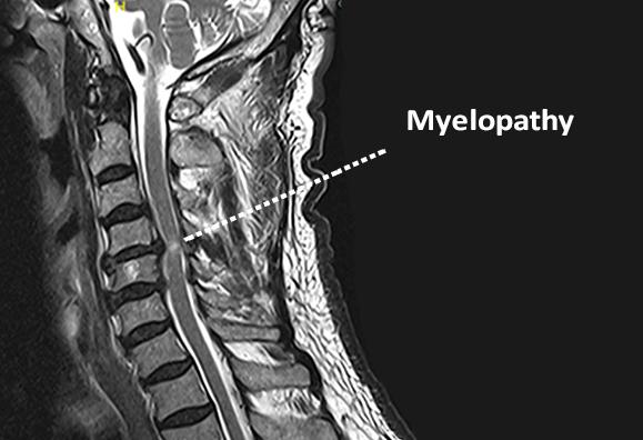 https://www.bonati.com/wp-content/uploads/2016/10/myelopathy3.png