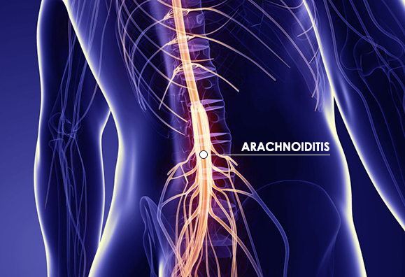 spinal steroid injections for pain
