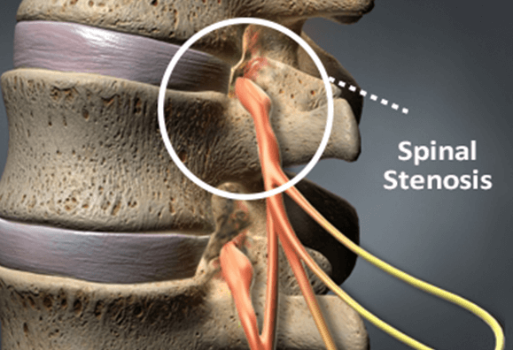 Diagnosed With Spinal Stenosis: Treatment Steps
