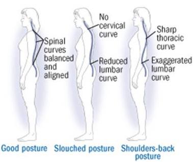10 Helpful Tips When Sleeping With Sciatica Bonati Spine