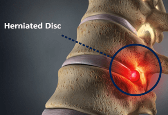 Do I Have A Herniated Disc?