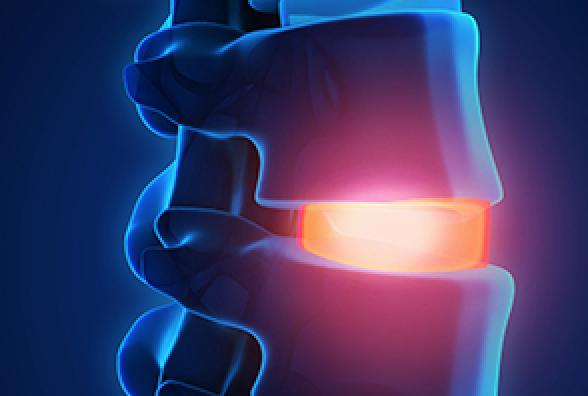 painful spine- cervical osteophytes