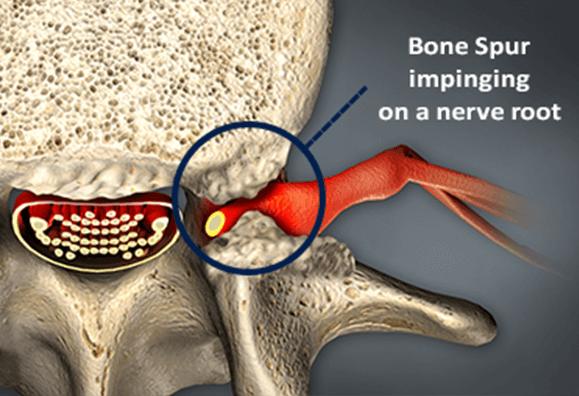 Do I Have Bone Spurs?