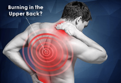 Burning Sensation in the Upper Back